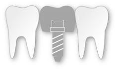 mehrere zahnzusatzversicherungen möglich